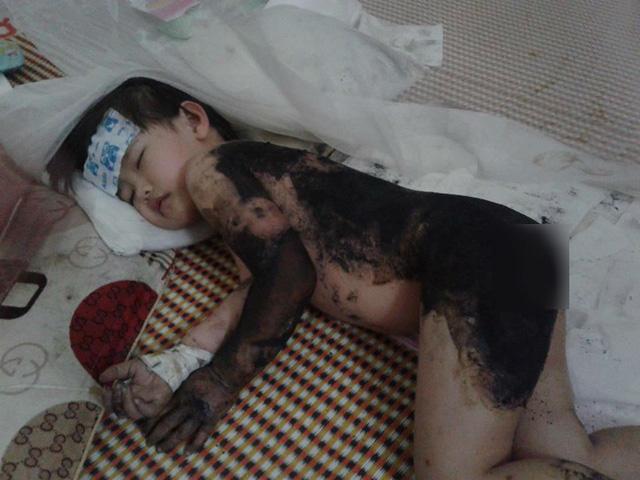 Xót xa cơn đau của bé gái 3 tuổi chỉ vì một lần bất cẩn của mẹ