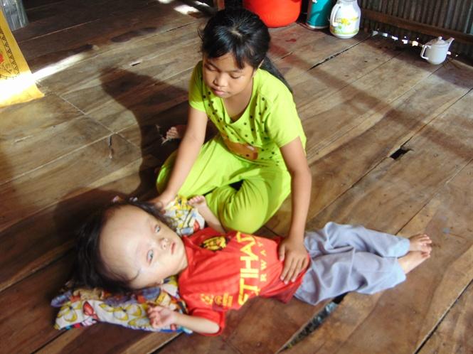 Bé gái tội nghiệp bị bệnh não có nước rất cần sự giúp đỡ của cộng đồng