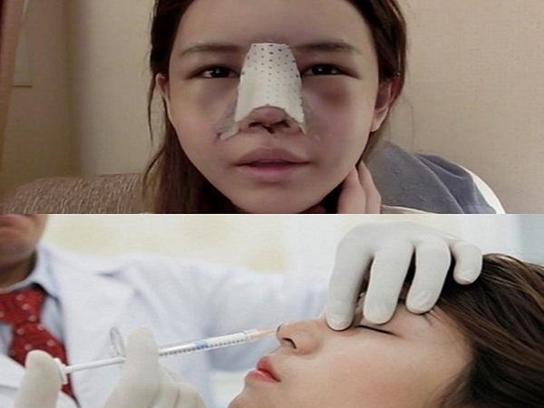 Khiếp đảm cô gái bị đột quỵ, mù mắt trái sau khi tiêm chất làm đầy nâng mũi