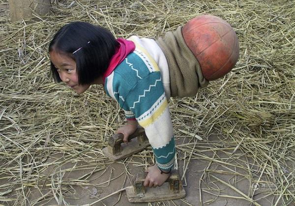 'Cô bé bóng rổ' bị cắt bỏ toàn bộ phần thân dưới giờ đã trở thành thiếu nữ rồi!