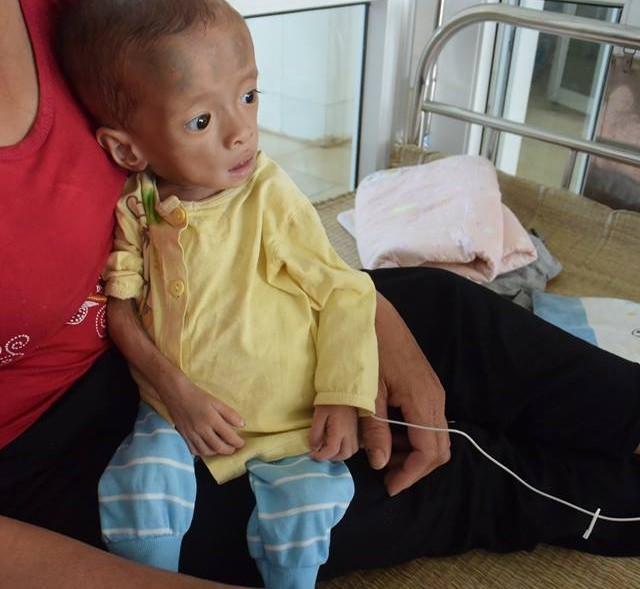 Rơi nước mắt thương em bé mắc bệnh lạ, 4 tuổi nặng hơn 3kg
