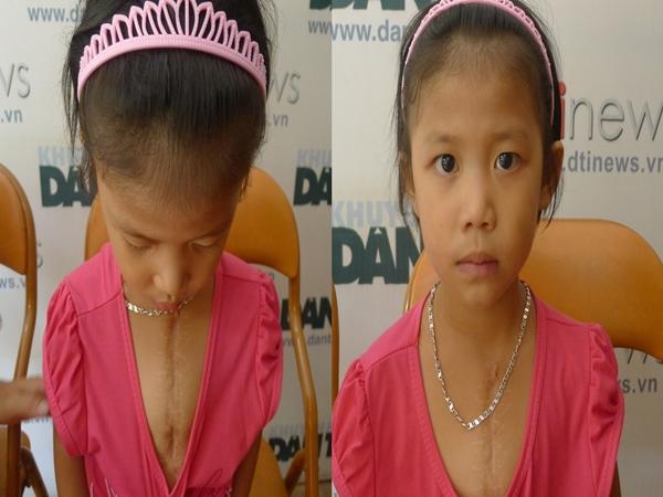 Bé gái 10 tuổi có nguy cơ tử vong vì thiếu 100 triệu đồng để mổ tim